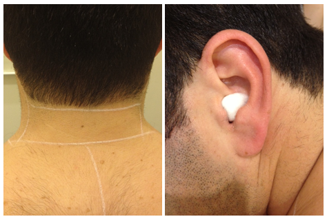 Image Gallery Hairy Ears Treatment