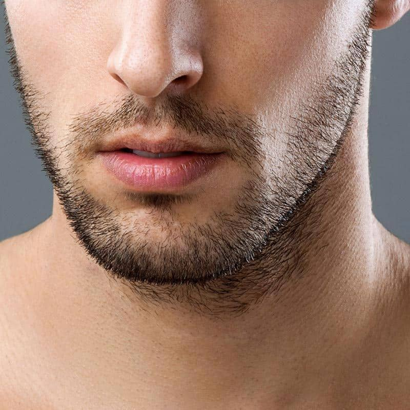 Facial ingrown hairs in men